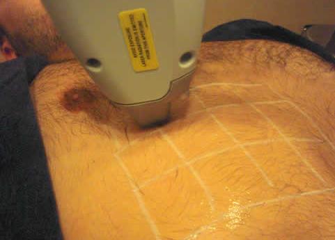 depilarse-el-pecho-con-la-foto-depilacion