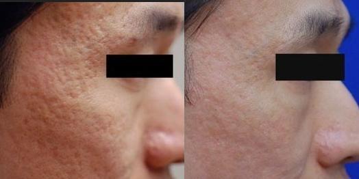 fotos-de-cicatrices-de-acne-antes-y-despues-con-dermoabrasion