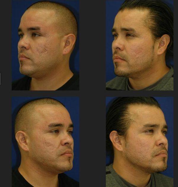 fotos-de-cicatrices-de-acne-antes-y-despues-varias-sesiones-laser