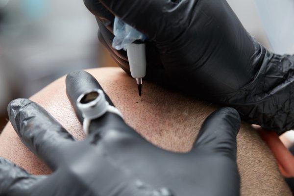 Micropigmentacion capilar para hombres