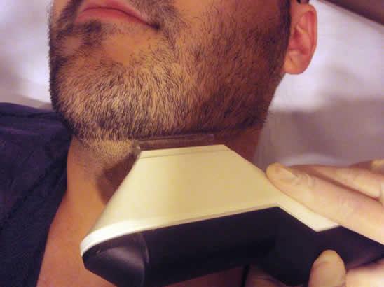 depilacion-laser-masculina-barbilla-menton