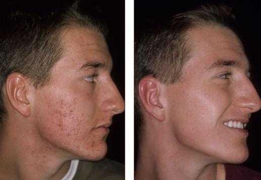 fotos-cicatrices-de-acne-antes-y-despues