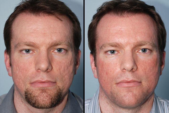 fotos-de-acne-antes-y-despues - Modaellos.com