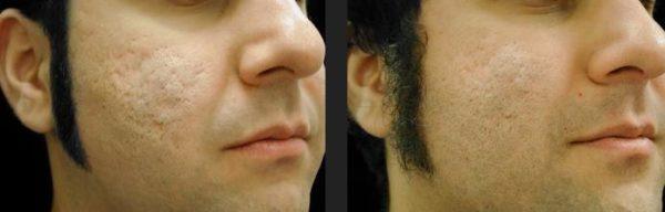fotos-de-cicatrices-de-acne-antes-y-despues-tratamiento-con-laser-co2
