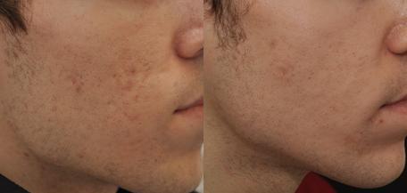 fotos-de-cicatrices-de-acne-antes-y-despues-tratamiento-con-silicona-inyectada