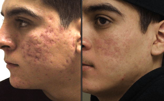 fotos de cicatrices de acne antes y despues tratamiento laser efectivo. Black Bedroom Furniture Sets. Home Design Ideas