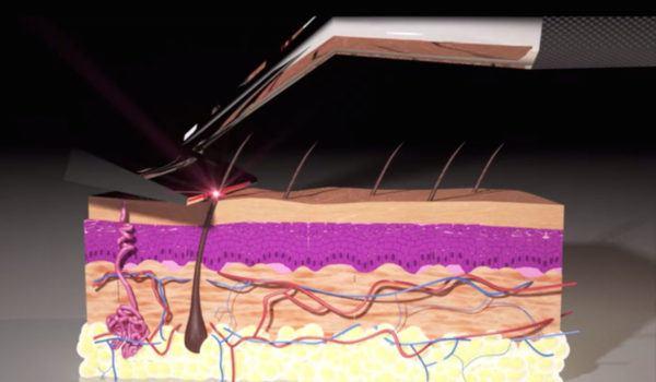 skarp-laser-razor-maquinilla-laser-muy-ligera-demostracion