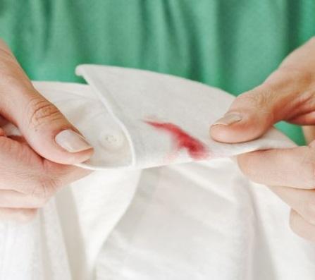 eliminar-manchas-de-sangre-de-la-ropa-camisa