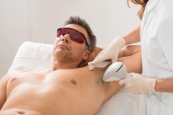 Diferentes metodos de depilacion laser