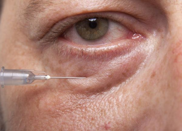 Relleno de ojeras y bolsas con ácido hialurónico para hombres