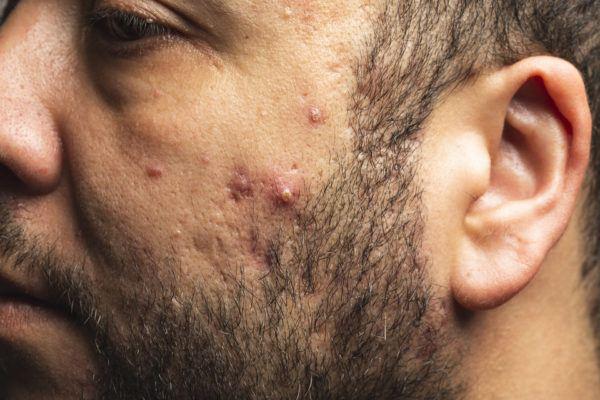 Causas del acné del adulto en hombres y cómo tratarlo adecuadamente